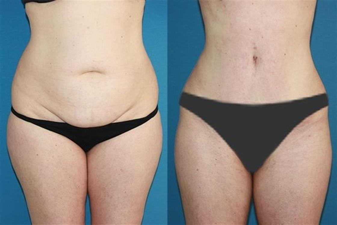 Corrige el abdomen y crea un nuevo ombligo con la Abdominoplastia / Autor: Instituto Pérez de la Romana